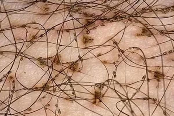 паразиты в крови человека симптомы