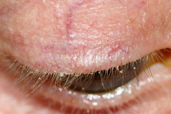 Где находятся глазные зубы, симптомы прорезывание клыков у ...