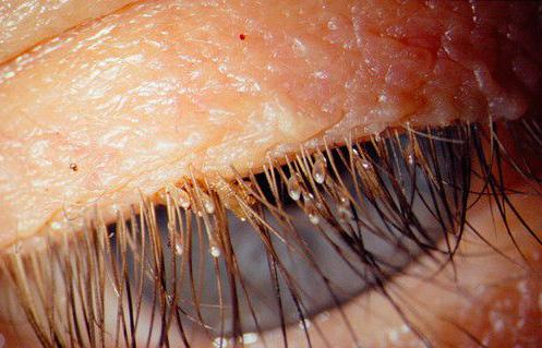 паразиты в волосах человека кроме вшей