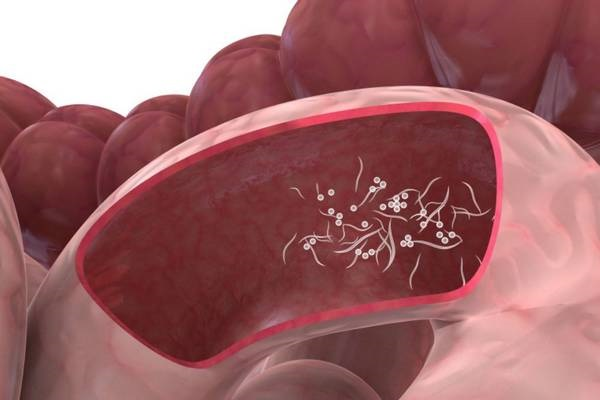 zarazhenie-enterobozom