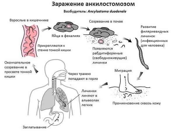 Что такое Анкилостомоз?